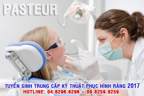 Tuyển sinh đào tạo Trung cấp Kỹ thuật viên Phục hình răng năm 2017