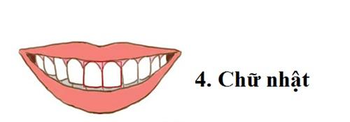 Răng hình chữ nhật sống rất thực tế