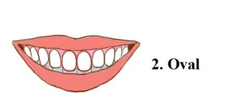Răng hình ovan rất tình cảm