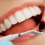 Răng hình vuông thường làm lãnh đạo