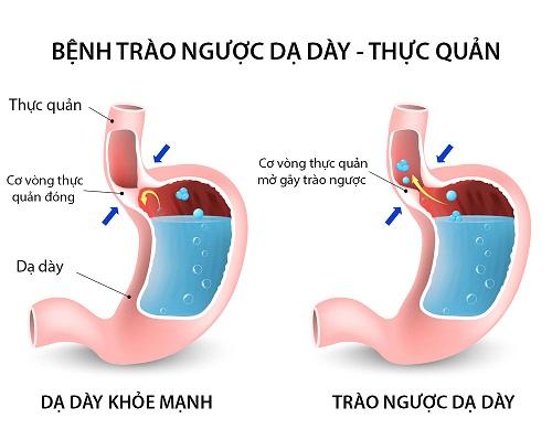 Trào ngược dạ dày - Dấu hiệu triệu chứng
