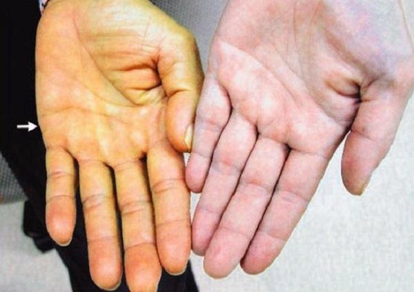 Vàng da là dấu hiệu của bệnh ung thư gan